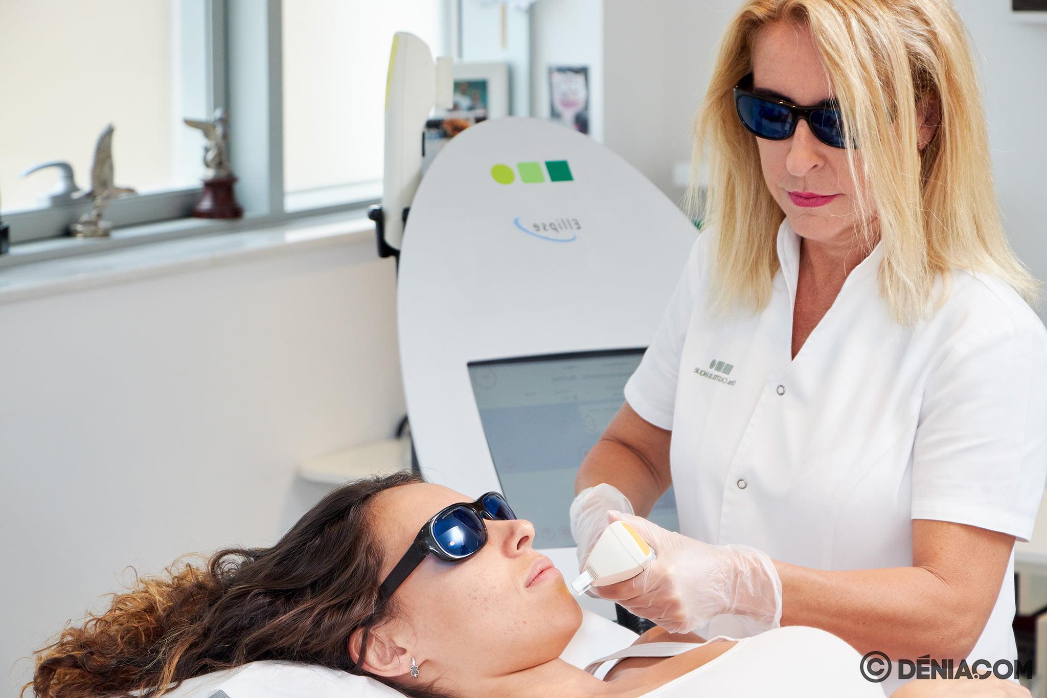 Láser facial – Clínica Doctora Castelblanque