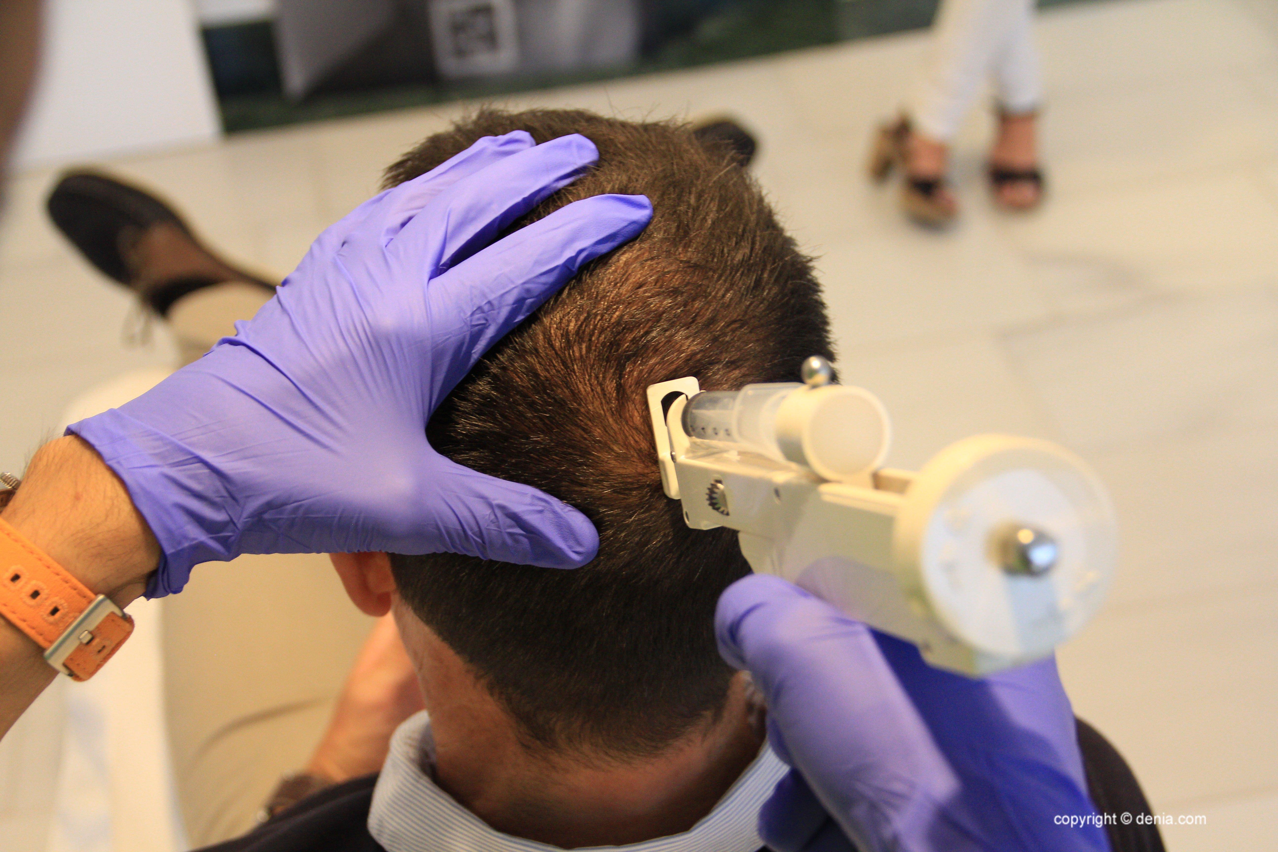 Уход за волосами в Дении - Клиника Кастельбланк