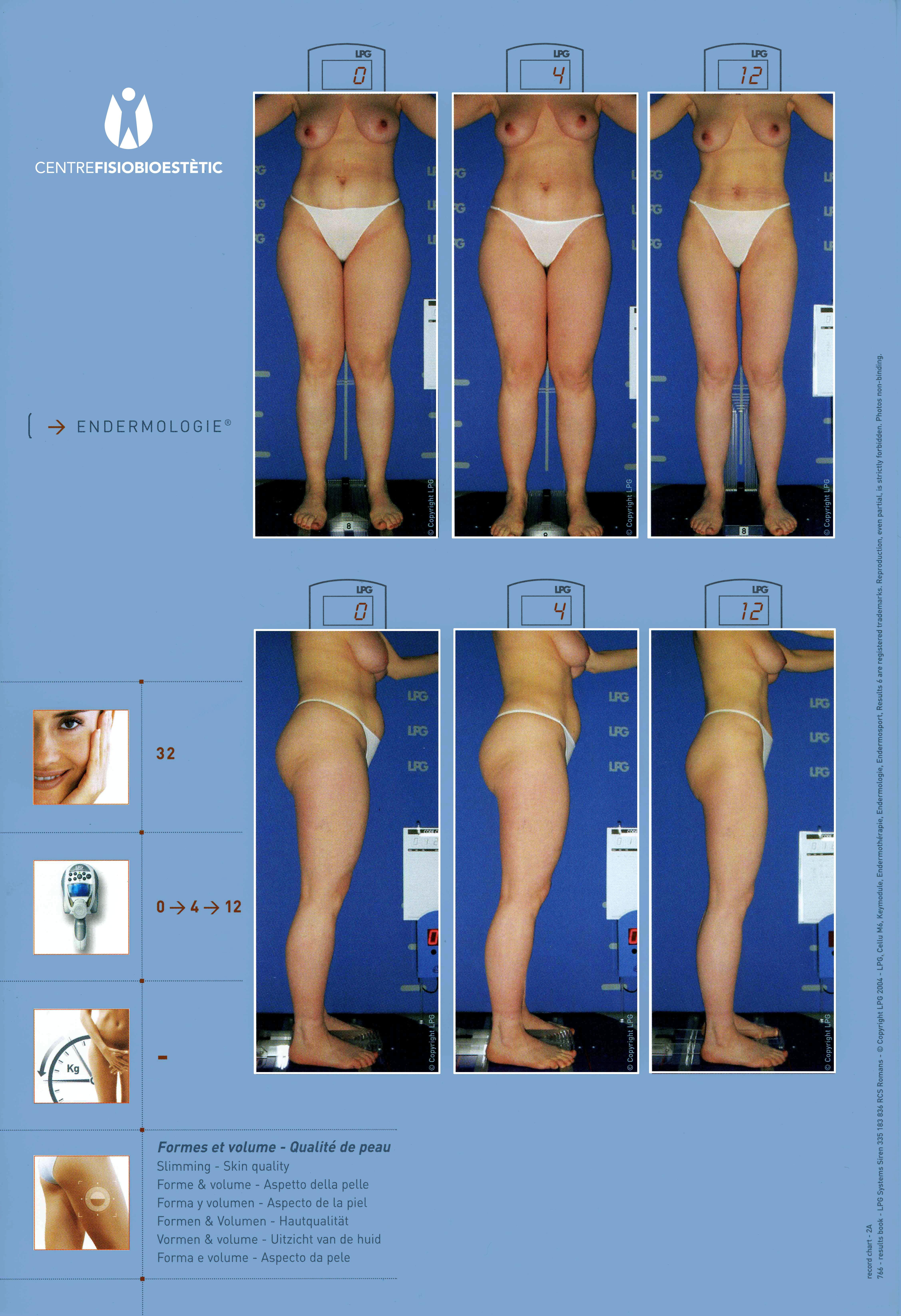 Centre Fisiobioestètic - abans i després
