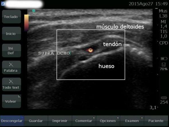 Light tendon injury