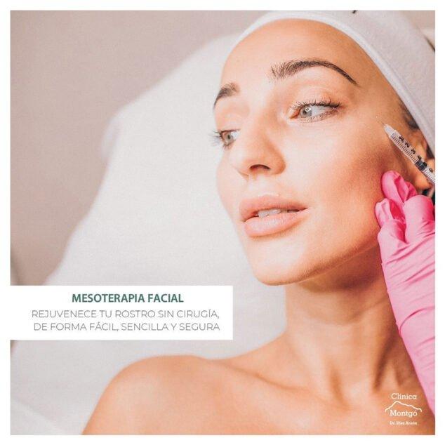 Imagen: Mesoterapia facial - Clínica Médica Montgó