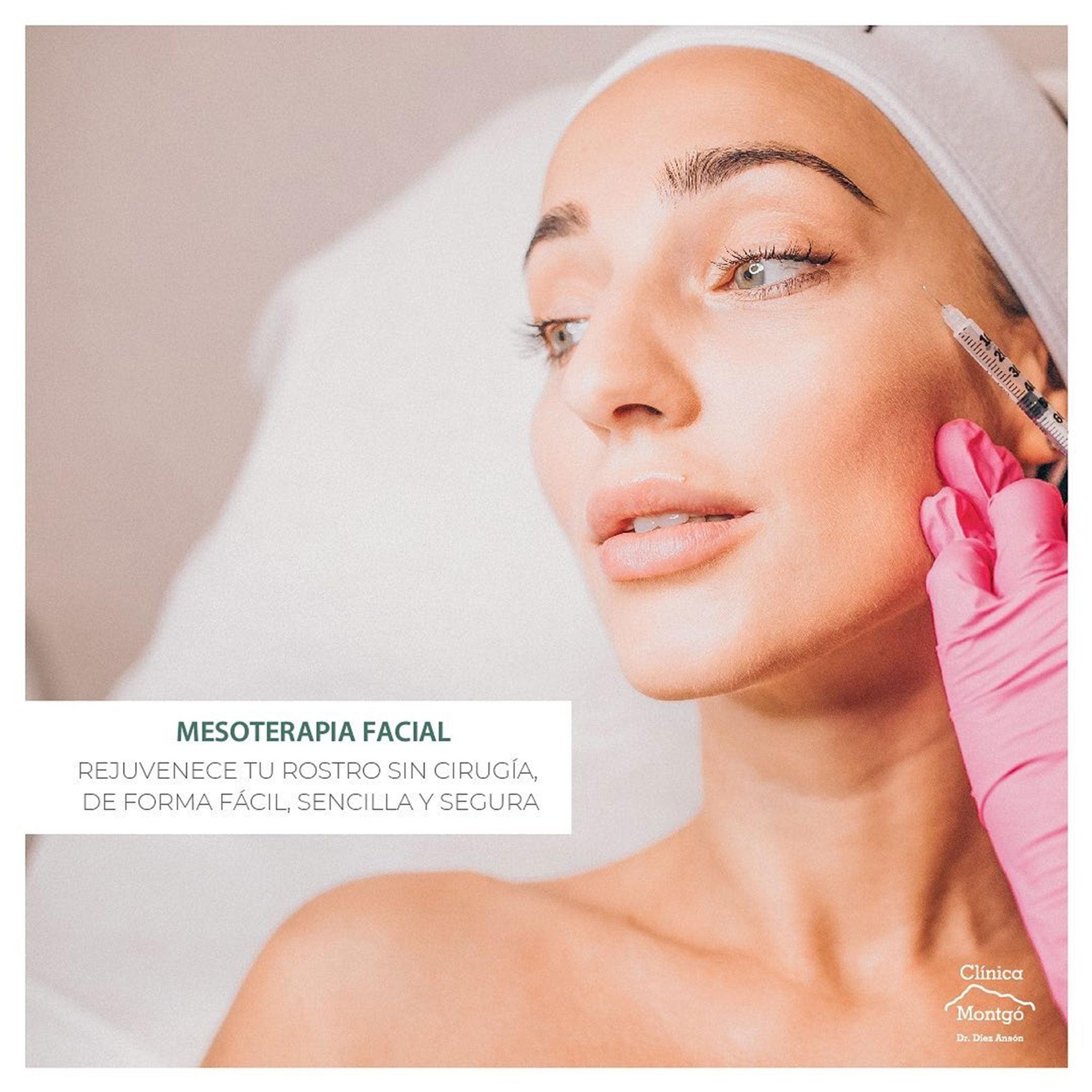 Mesoterapia facial – Clínica Médica Montgó