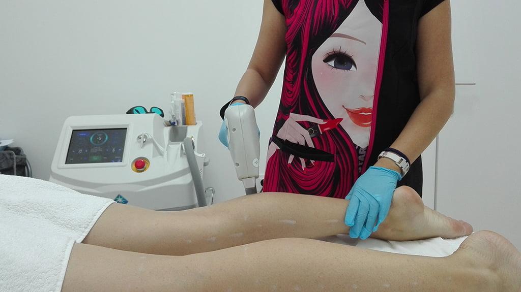 Laser Diode Victoria Estetica Beauty Legs