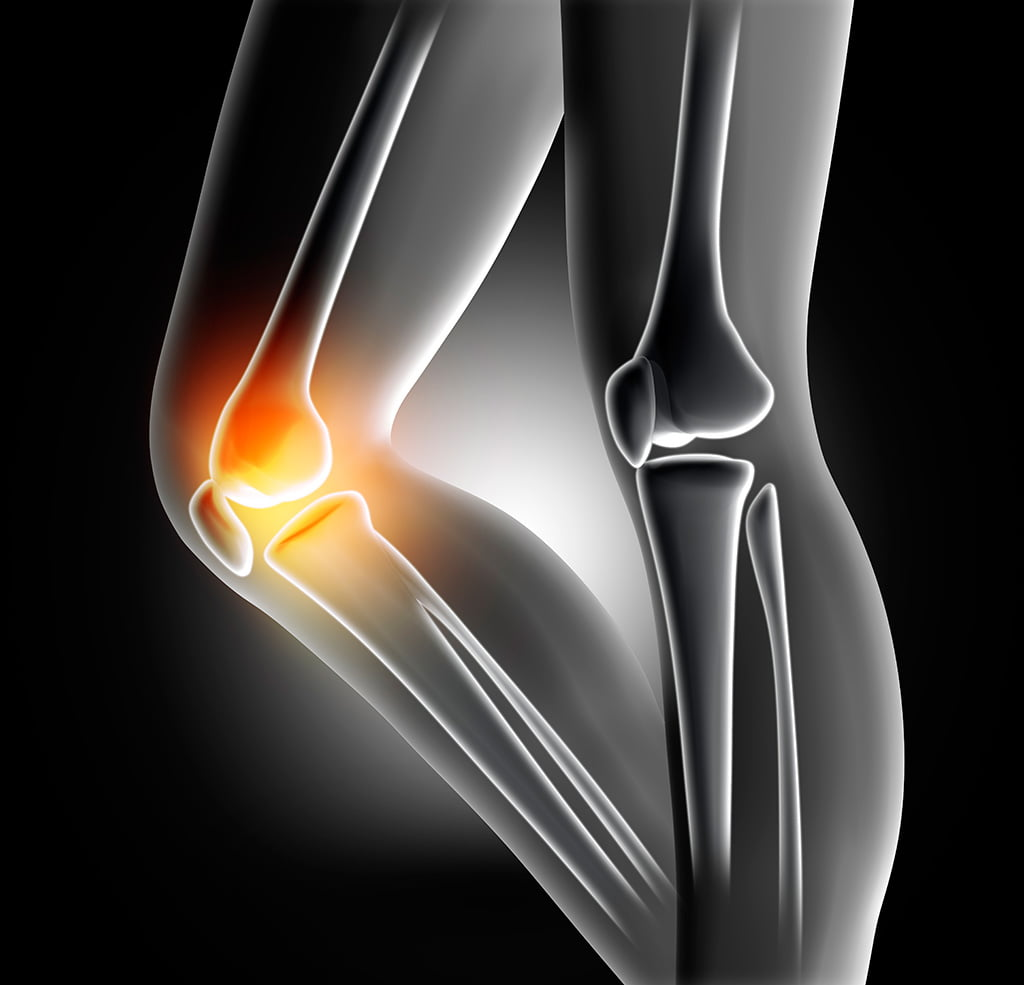 changes in knee biomechanics after a Hip joint biomechanics in those with and without post-traumatic knee osteoarthritis after anterior cruciate ligament injury.