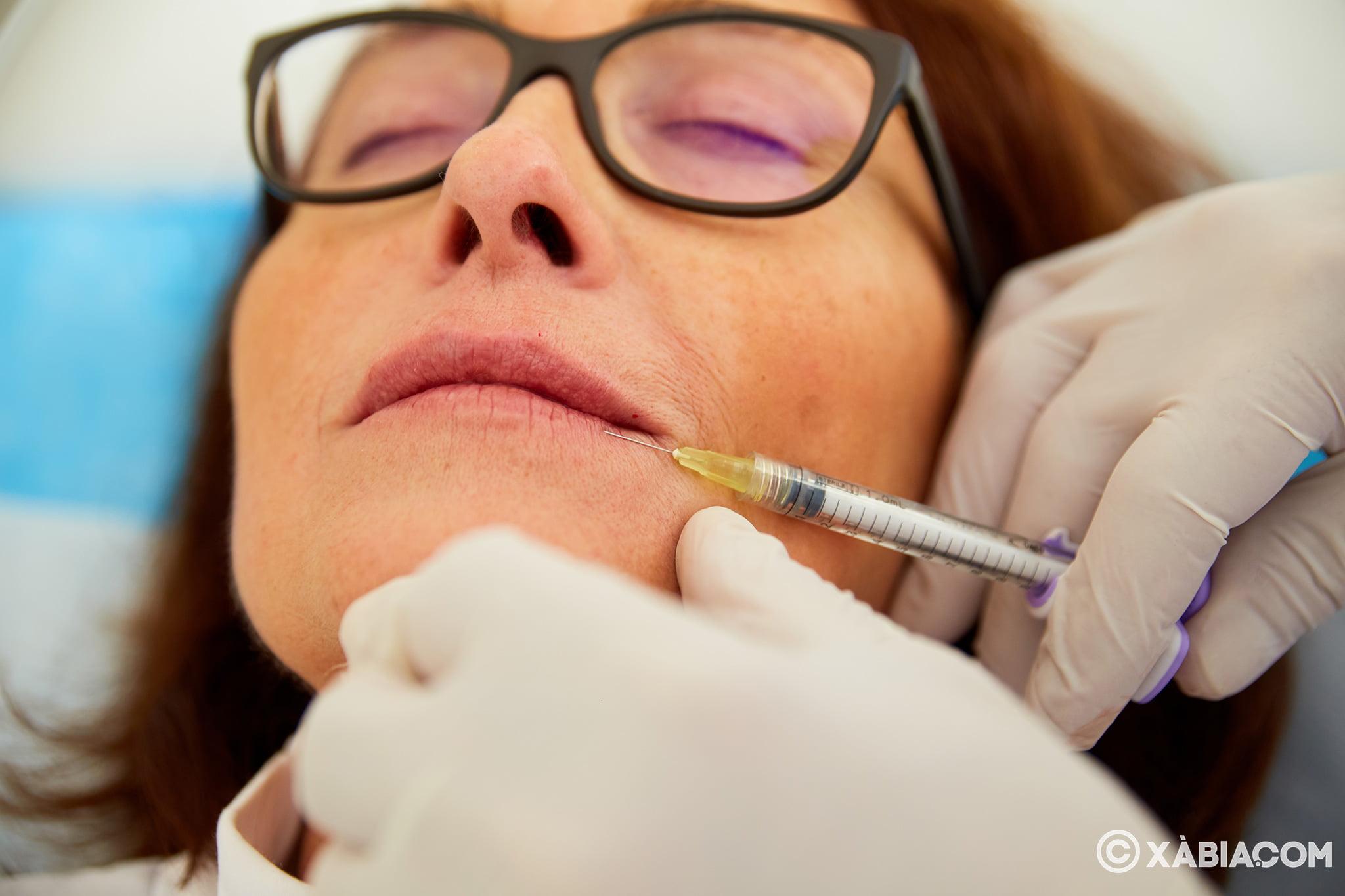 Ácido hialurónico en Jávea – Policlínica Cume