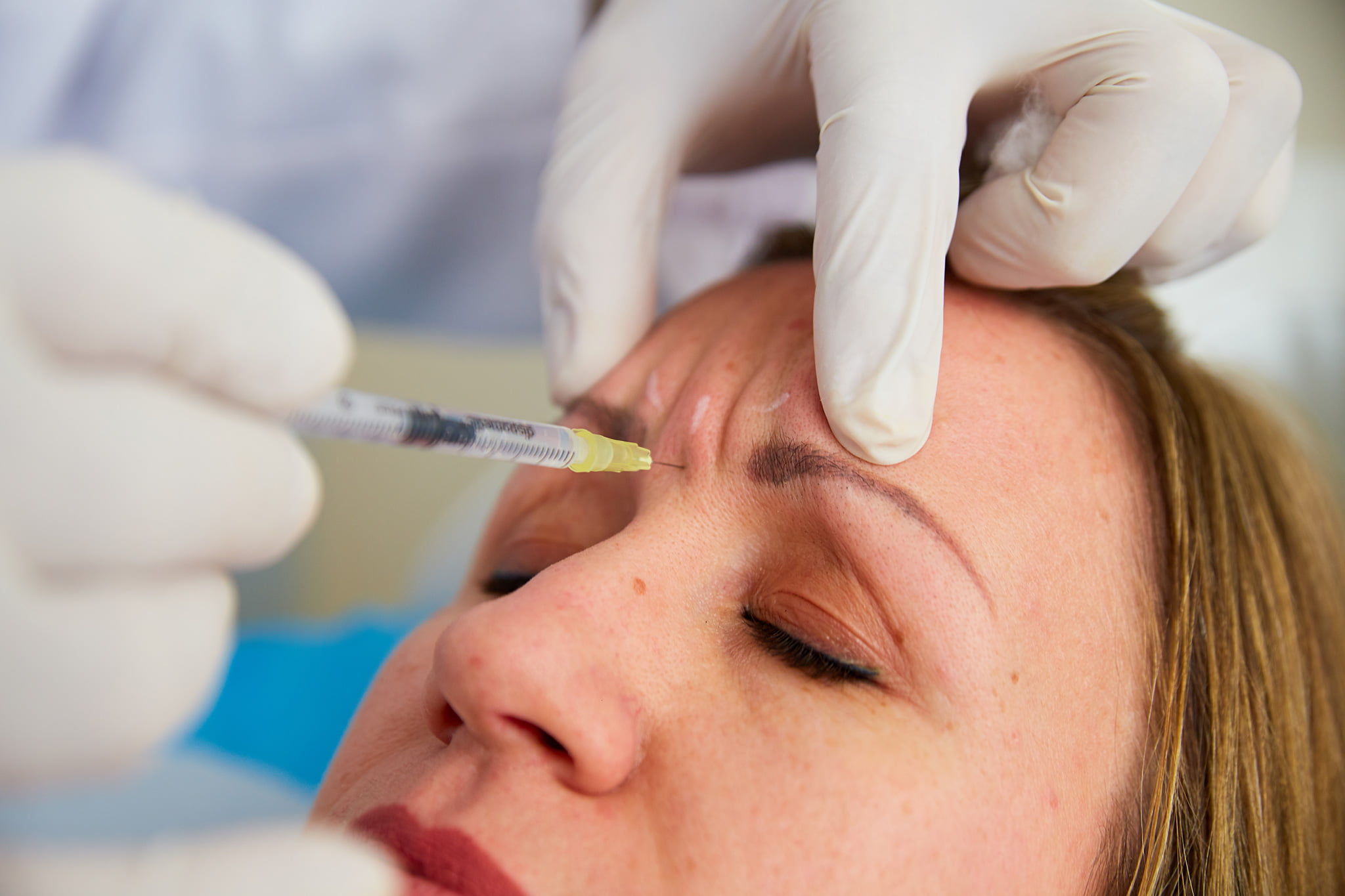 Botox en Jávea – Policlínica Cume