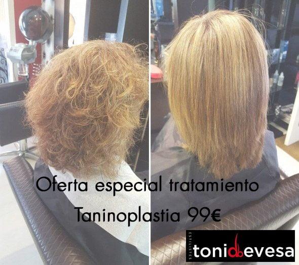 Toni Taninoplastia offer Devesa