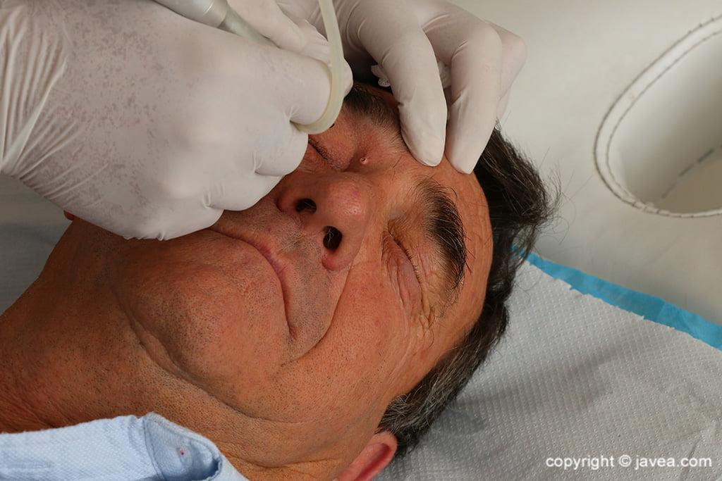 Tratamientos Médicos en Jávea – Policlínica Cume
