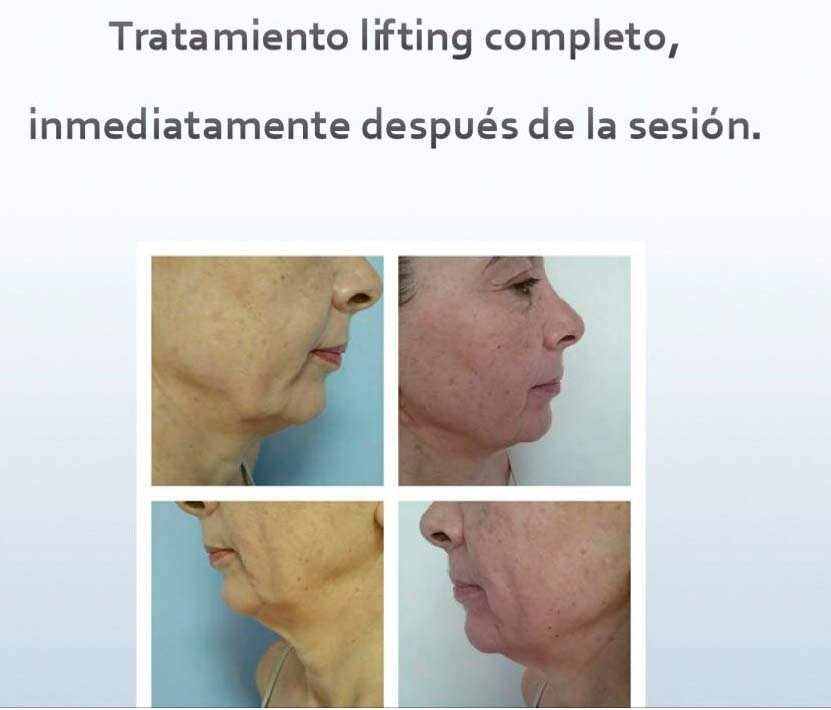 Full lifting treatment Dorita and Inma Stylists