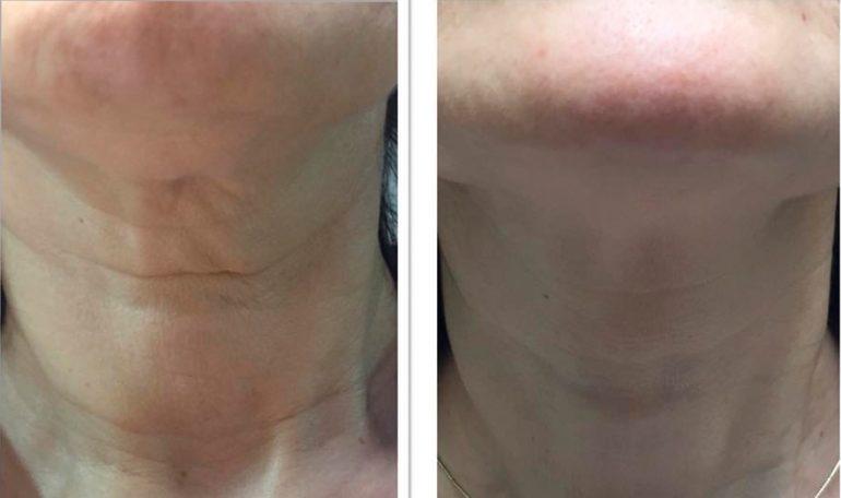 Wrinkles neck Dorita and Inma Stylists