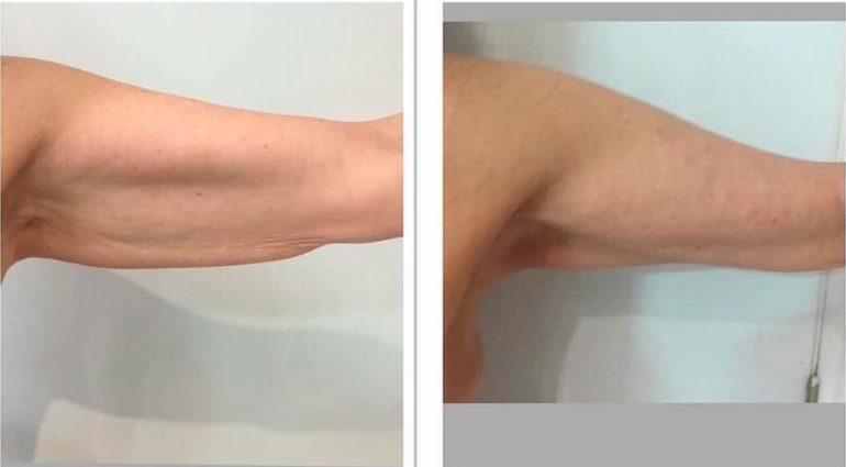 Brazo antes y después del tratamiento Ultrasonix Dorita e Inma Estilistas