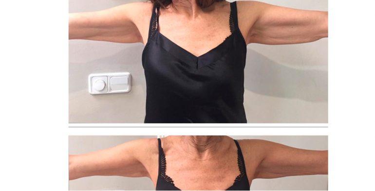 Ultrason arms Dorita and Inma Stylists