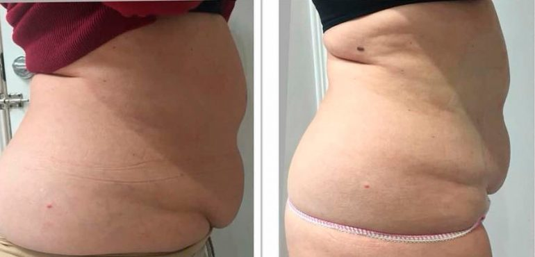 Accumulated fat after Ultrasonix Dorita and Inma Stylists