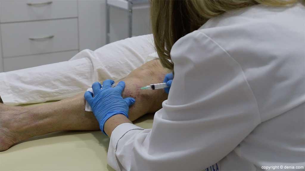 Krampfadern Klinik Arzt Flores de Apodaca