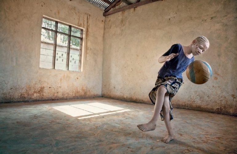 Albino-Ausstellung im Hospital de Dénia