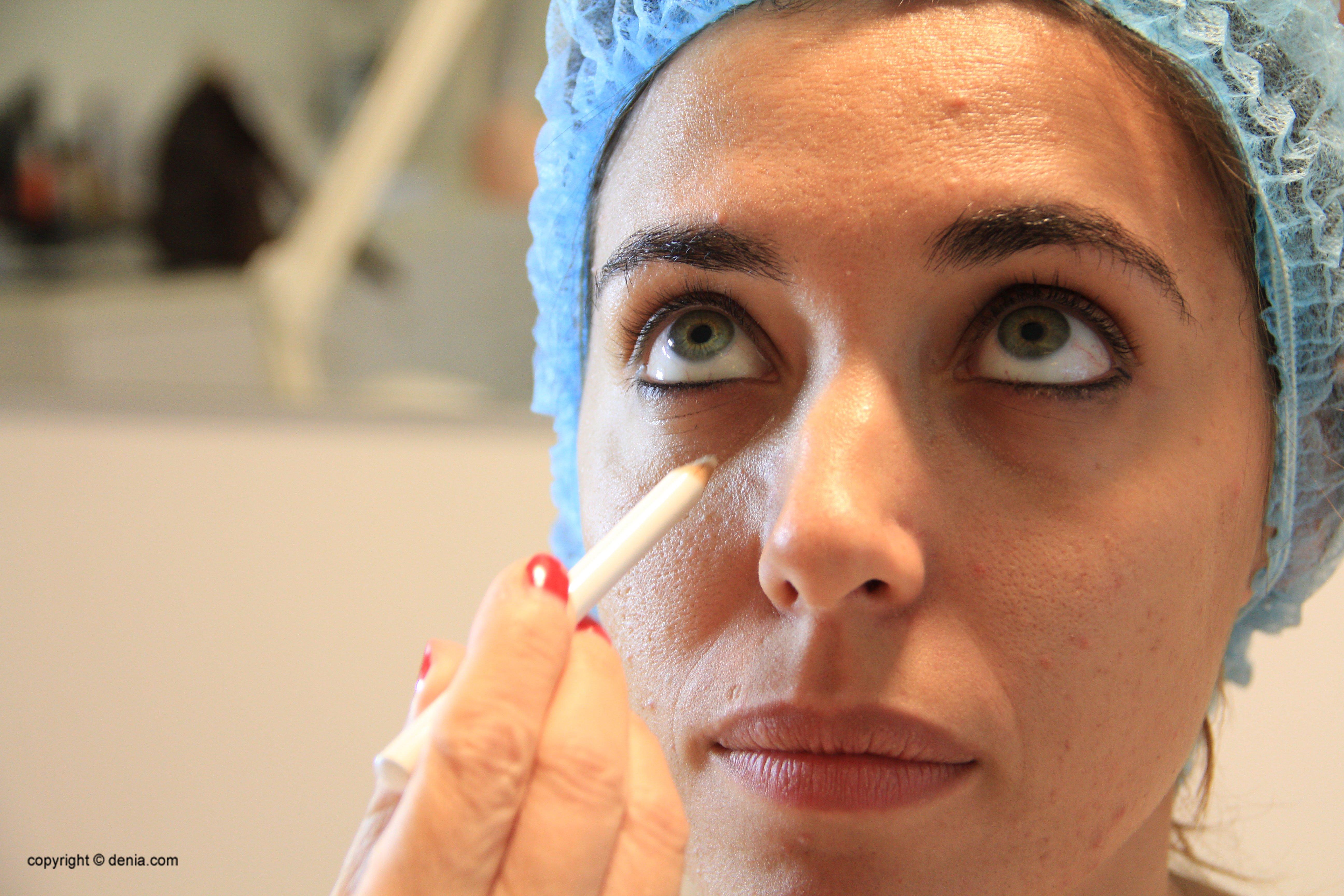 Potencia la teva bellesa amb tractaments de medicina estètica a Dénia - Clínica Estètica Castelblanque