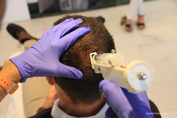 Изображение: Уход за волосами в Дении - Эстетическая клиника Castelblanque