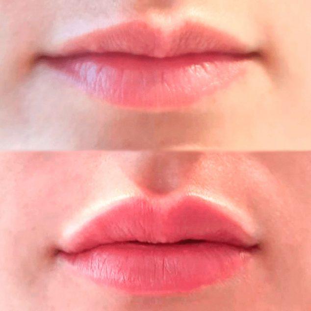 Image: Cas de réussite dans un traitement de remplissage des lèvres à l'acide hyaluronique - Clínica Estética Castelblanque