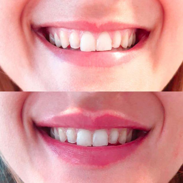 Image: Avant et après un sourire gingival - Clinique Esthétique de Castelblanque