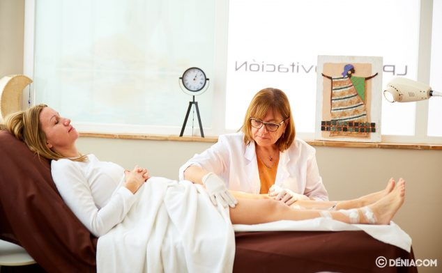 Imagen: Tratamiento antivarices - Policlínica CUME