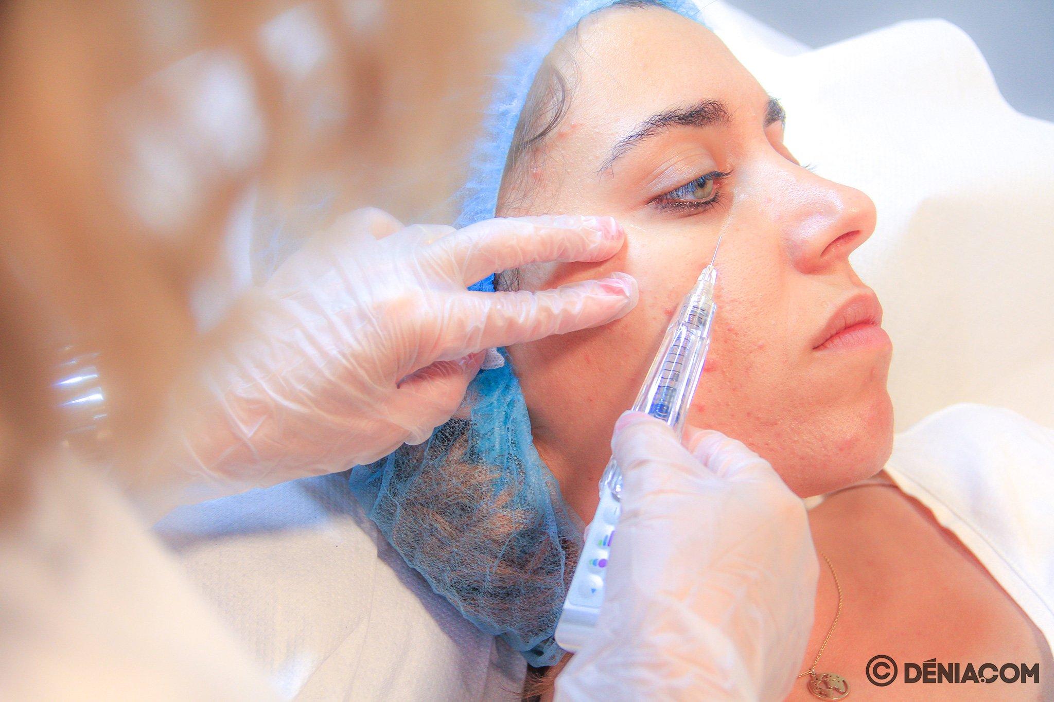 Tratamiento con ácido hialurónico en Dénia – Clínica Estética Castelblanque