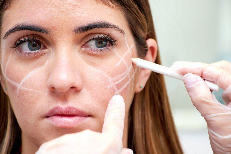 Tratamiento con ácido hialurónico para proyectar los pómulos - Clínica Estética Castelblanque