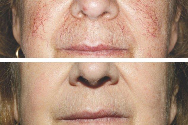 Imagen: Antes y después del tratamiento con láser de arañas vasculares - Clínica Estética Castelblanque