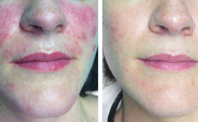 Image: Before and after a treatment against spots on the face - Castelblanque Aesthetic Clinic