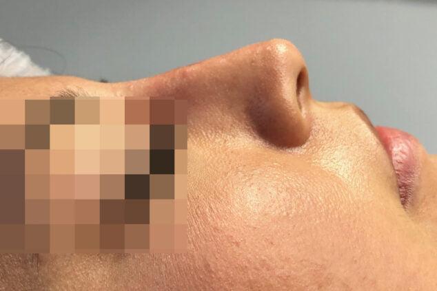 Imagen: Corrección de nariz sin cirugía en Dénia - Clínica Médica Montgó