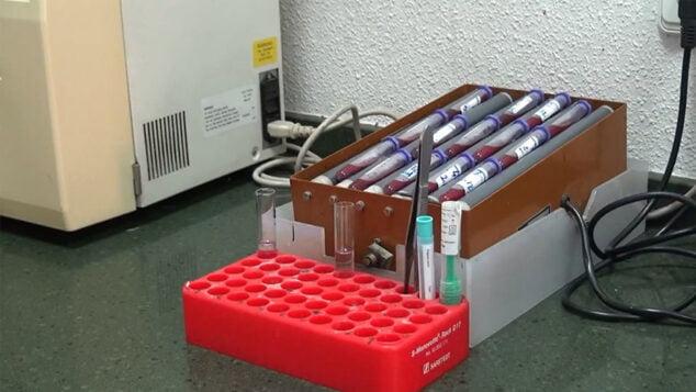 Imagen: Análisis de sangre en Dénia - Laboratorios González